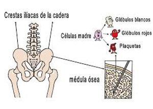 extracción la médula ósea